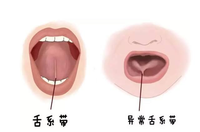 舌系带过短